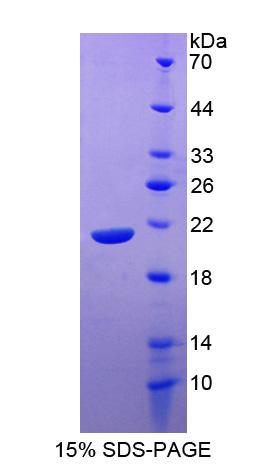 SLAMF7 / CRACC Protein - Recombinant Signaling Lymphocytic Activation Molecule Family, Member 7 By SDS-PAGE