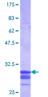 SLC11A1 / NRAMP Protein - 12.5% SDS-PAGE Stained with Coomassie Blue.
