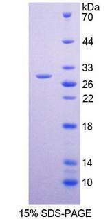 Recombinant  Potassium Chloride Cotransporters 4 By SDS-PAGE