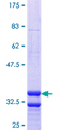 SLC17A4 Protein - 12.5% SDS-PAGE Stained with Coomassie Blue.