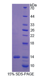 SLC1A1 / EAAT3 Protein - Recombinant Excitatory Amino Acid Transporter 3 By SDS-PAGE