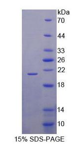 SLC1A6 / EAAT4 Protein - Recombinant Excitatory Amino Acid Transporter 4 By SDS-PAGE