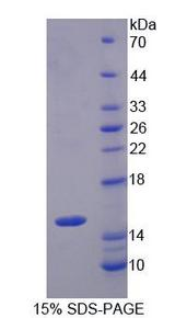 SLC22A4 / OCTN1 Protein - Recombinant  Organic Cation/Ergothioneine Transporter By SDS-PAGE