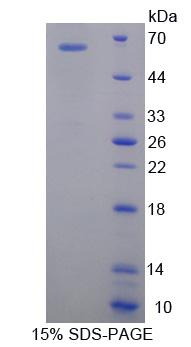 SLC25A20 / CACT Protein - Recombinant  Carnitine Acylcarnitine Translocase By SDS-PAGE