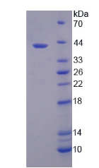 SLC39A6 / LIV-1 Protein - Recombinant  Solute Carrier Family 39, Member 6 By SDS-PAGE