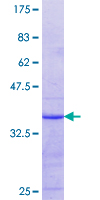 SLC43A1 Protein - 12.5% SDS-PAGE Stained with Coomassie Blue.