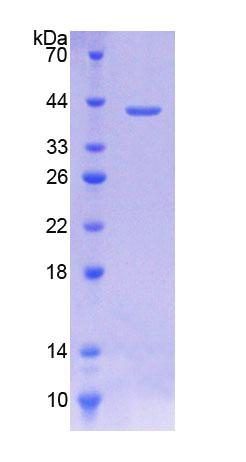 SLC44A1 / CD92 Protein - Recombinant  Choline Transporter Like Protein 1 By SDS-PAGE