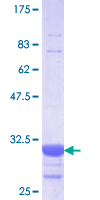 SLC5A2 / SGLT2 Protein - 12.5% SDS-PAGE Stained with Coomassie Blue.