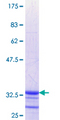 SLC6A11 / GAT-3 Protein - 12.5% SDS-PAGE Stained with Coomassie Blue.