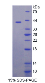 SLC6A4 / SERT Protein - Recombinant  Serotonin Transporter By SDS-PAGE