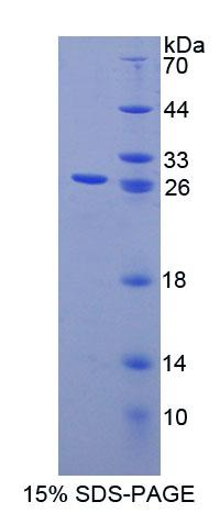 SLC9A1BP / CHP Protein - Recombinant Calcium Binding Protein P22 By SDS-PAGE