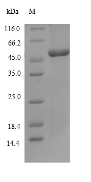 SLURP1 / ARS / MDM Protein - (Tris-Glycine gel) Discontinuous SDS-PAGE (reduced) with 5% enrichment gel and 15% separation gel.