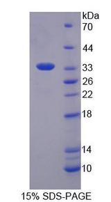 SMUG1 Protein - Recombinant Single Strand Selective Monofunctional Uracil DNA Glycosylase 1 By SDS-PAGE