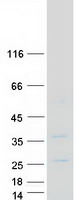 Purified recombinant protein SNAI3 was analyzed by SDS-PAGE gel and Coomassie Blue Staining