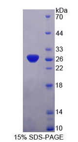 SNAP25 Protein - Recombinant  Synaptosomal Associated Protein 25kDa By SDS-PAGE