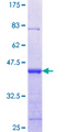 SNTA1 / Syntrophin Alpha 1 Protein - 12.5% SDS-PAGE Stained with Coomassie Blue.