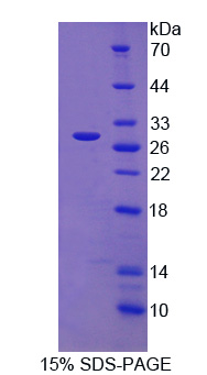 SNX13 Protein - Recombinant Sorting Nexin 13 By SDS-PAGE
