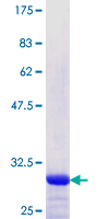 SOX5 Protein - 12.5% SDS-PAGE Stained with Coomassie Blue.
