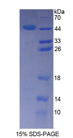 SPAG1 / TPIS Protein - Recombinant  Sperm Associated Antigen 1 By SDS-PAGE
