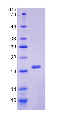 SRI / Sorcin Protein - Recombinant  Sorcin By SDS-PAGE