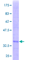 SRM / Spermidine Synthase Protein - 12.5% SDS-PAGE Stained with Coomassie Blue.