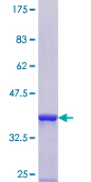 SRP54 Protein - 12.5% SDS-PAGE Stained with Coomassie Blue.