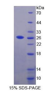 SRPRB Protein - Recombinant Signal Recognition Particle Receptor B By SDS-PAGE