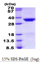 SRSF1 / SF2 Protein