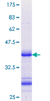 SSH1 Protein - 12.5% SDS-PAGE Stained with Coomassie Blue.