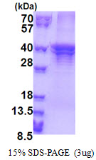 ST3GAL5 / GM3 Synthase Protein