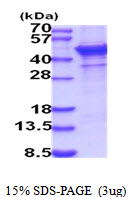 ST6GAL1 / CD75 Protein