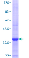 ST6GALNAC6 Protein - 12.5% SDS-PAGE Stained with Coomassie Blue.