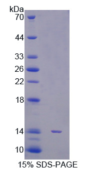 STAT5A Protein - Recombinant  Signal Transducer And Activator Of Transcription 5A By SDS-PAGE