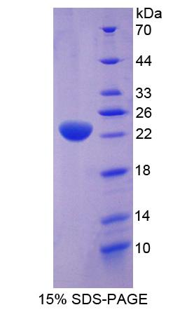 STI1 / STIP1 Protein - Recombinant Stress Induced Phosphoprotein 1 By SDS-PAGE