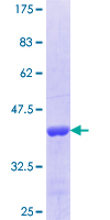 STUB1 / CHIP Protein - 12.5% SDS-PAGE Stained with Coomassie Blue.