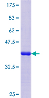 SV2C Protein - 12.5% SDS-PAGE Stained with Coomassie Blue.