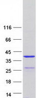 Purified recombinant protein SYCE1L was analyzed by SDS-PAGE gel and Coomassie Blue Staining