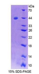 SYCN Protein - Recombinant Syncollin By SDS-PAGE