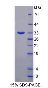 SYTL2 / SLP2 Protein - Recombinant  Synaptotagmin Like Protein 2 By SDS-PAGE