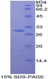 TAB1 Protein - Recombinant Mitogen Activated Protein Kinase Kinase Kinase 7 Interacting Protein 1 By SDS-PAGE