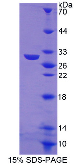 TANK Protein - Recombinant  TRAF Family Member Associated NFKB Activator By SDS-PAGE