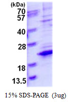 TCEAL8 Protein