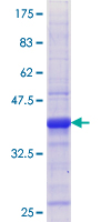 TDP1 Protein - 12.5% SDS-PAGE Stained with Coomassie Blue.