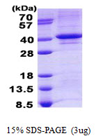 TDP1 Protein