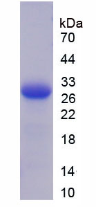 THBS2 / Thrombospondin 2 Protein - Recombinant  Thrombospondin 2 By SDS-PAGE