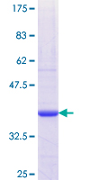 THOP1 / Thimet Oligopeptidase Protein - 12.5% SDS-PAGE Stained with Coomassie Blue.