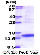 TIMM8A Protein