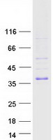 TIRAP Protein - Purified recombinant protein TIRAP was analyzed by SDS-PAGE gel and Coomassie Blue Staining