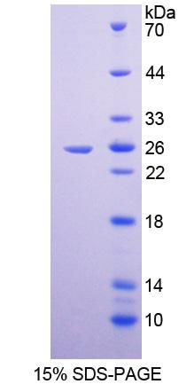 TJP1 / ZO-1 Protein - Recombinant  Tight Junction Protein 1 By SDS-PAGE