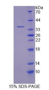 TKT / Transketolase Protein - Recombinant  Transketolase By SDS-PAGE